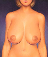 Breast reduction with Dr Sam Bartholomew