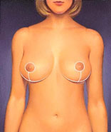 Breast reduction surgical procedure