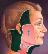 Facelift Surgical procedure