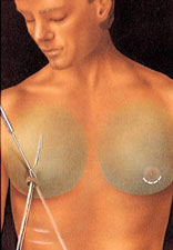 Male breast reduction procedure