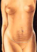 Tummy tuck surgical procedure