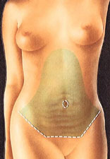 Tummy Tuck Portland Oregon