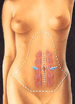 Tummy tuck with Dr Sam Bartholomew