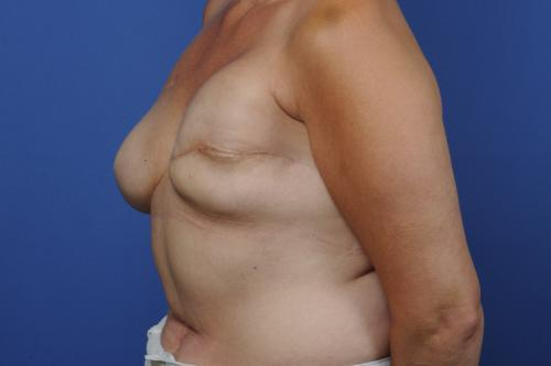 Breast Reconstruction Revision Before & After Image