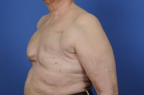 Delayed Breast Reconstruction Before & After Image