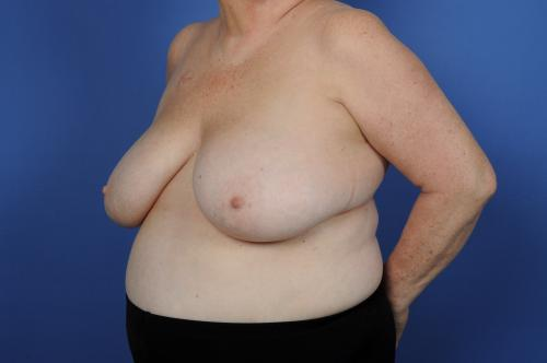 Lumpectomy Breast Reduction Before & After Image