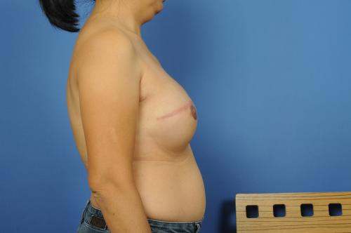 Nipple Reconstruction Before & After Image