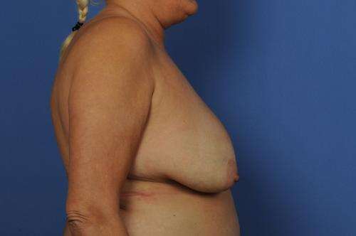 Tissue Expander Breast Implant Reconstruction  Before & After Image
