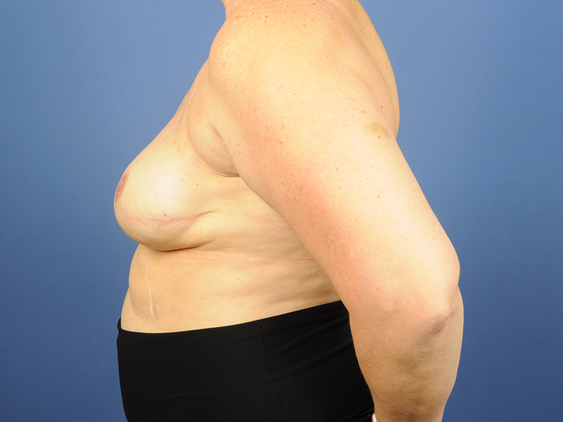 Breast Implant Reconstruction Before & After Image