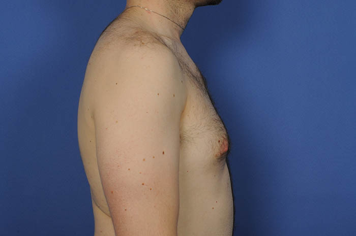 Male Breast Reduction Before & After Image